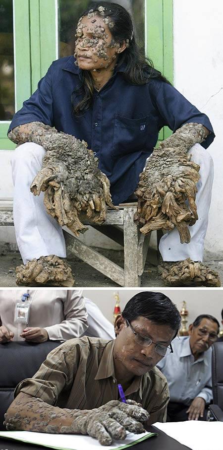 «Человеку-дереву» удалили шесть килограммов бородавок